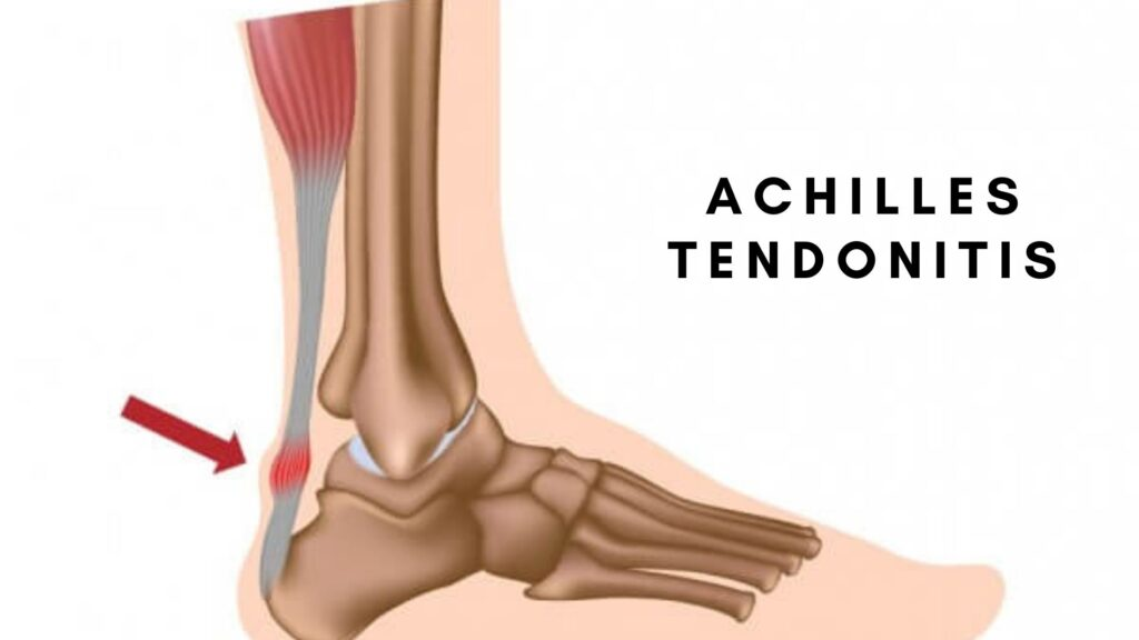 Common Foot Injury after Running