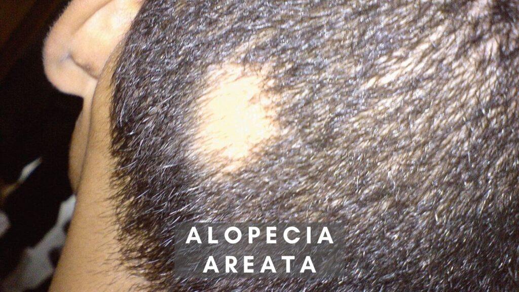 Hair Loss Alopecia AREATA