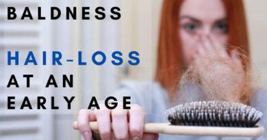 Teenagers hair Loss