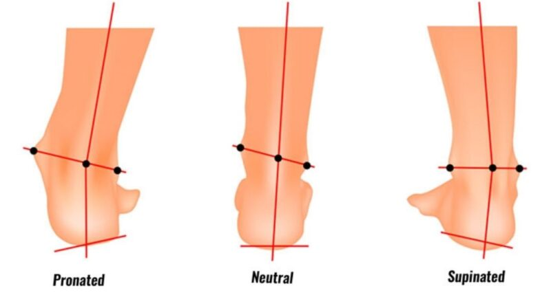 Pronation Vs Supination of foot