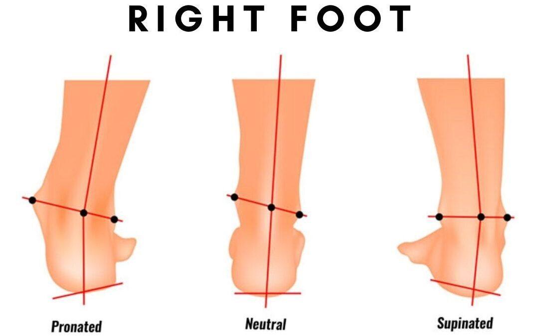 Pronation Vs Supination of foot
