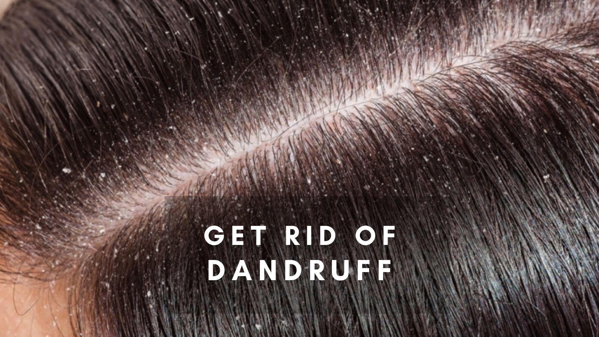 Home Remedies for Dandruff